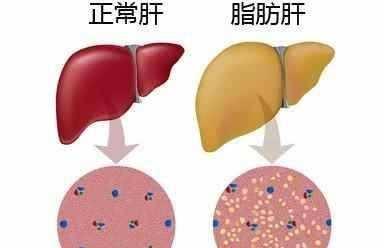 怎样逆转脂肪肝